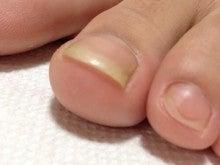 親指 臭い 爪 の 足