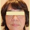 大阪からグリーンピール5DAYSでご来店 法令線と目袋と☆の画像