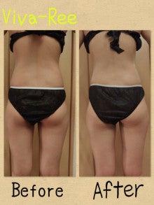 結果の出る リーズナブル 痩身 筋膜のリリース