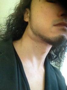 首 リンパ 腫れ