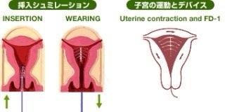 卵胞チェック&アッシャーマン症...