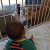 人口呼吸器②の画像