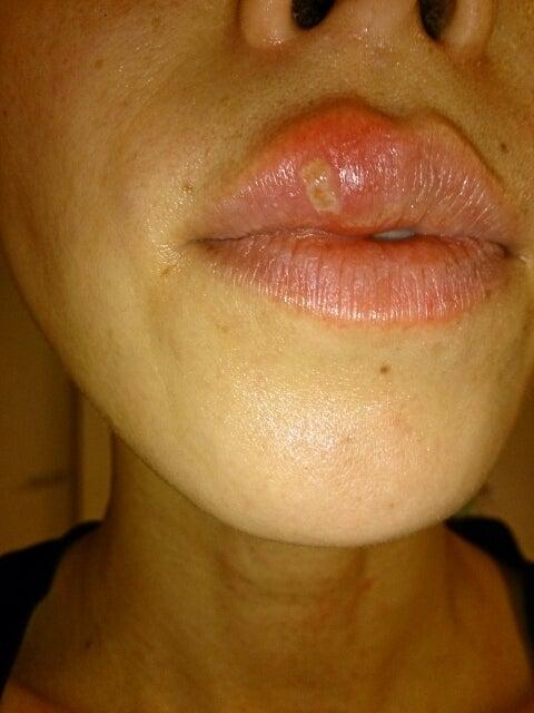 ヘルペス 治す 口唇