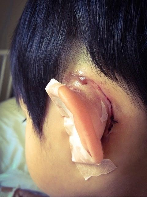 手術4日目(先天性真珠腫) | 発...