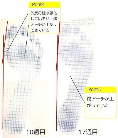 フットケア_施術例2