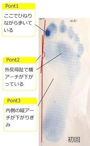 フットケア_施術例1