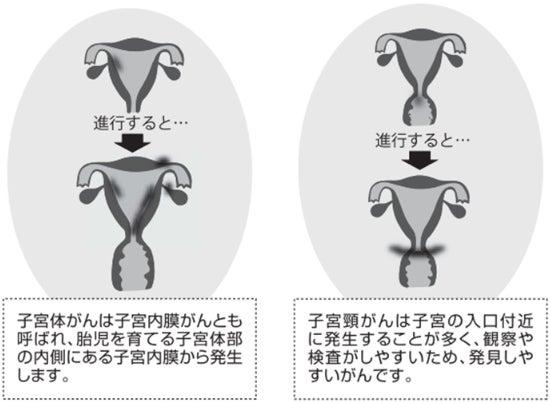子 宮頸 が ん 自覚 症状