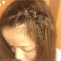 画像 コメント返信♡前髪アレンジ の記事より 2つ目