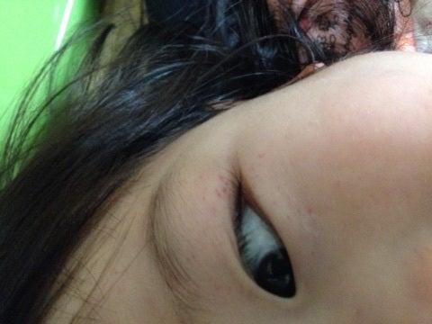 の 赤い 周り 目 斑点 子供