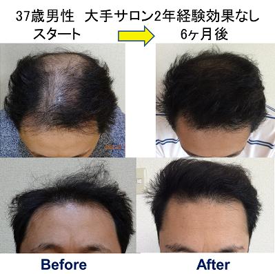 長野薄毛AGA治療