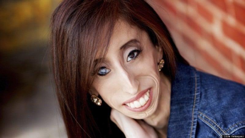 リジー ベラスケス 病気 誰もが彼女が世界で最も醜い女性だと言った。しかし、彼女は嘲笑をこ...