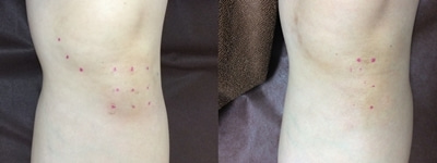 23膝関節水腫施術前後