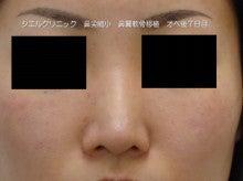 鼻尖縮小 軟骨移植