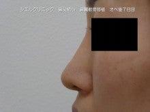 鼻翼軟骨移植
