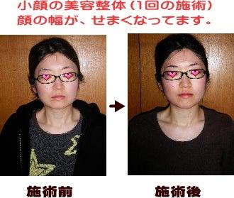 西東京市ひばりヶ丘駅の整体の顔の幅がせまくなり、透明なお肌になられました。