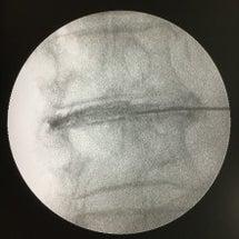 椎間板穿刺加圧術