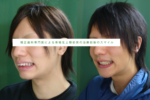 矯正歯科専門医による骨格性出っ歯のスマイル前後