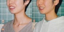 矯正歯科専門医による上顎前突治療後スマイル変化