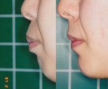 矯正歯科専門医による成人女性上顎前突治療例