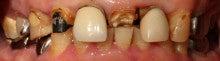 びっくり、虫歯になる本当の理由 ワイズデンタルキュアのブログ