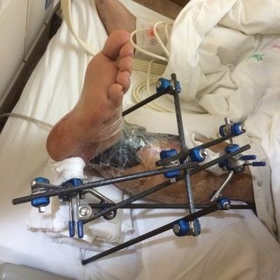 {観覧注意です〕足の脛の開放骨折と皮弁手術の入院生活ブログの記事に添付されている画像