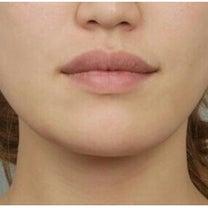 ID美容外科で輪郭整形をされた日本人モニターの体験談をご紹介♪:韓国整形サポートの記事に添付されている画像