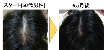 AGA 薄毛治療 大阪 枚方 守口 京橋
