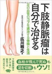 下肢静脈瘤は自分で治せる
