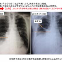 胸水貯留、胸膜癒着術…