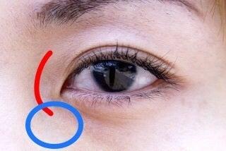 骨折 眼窩