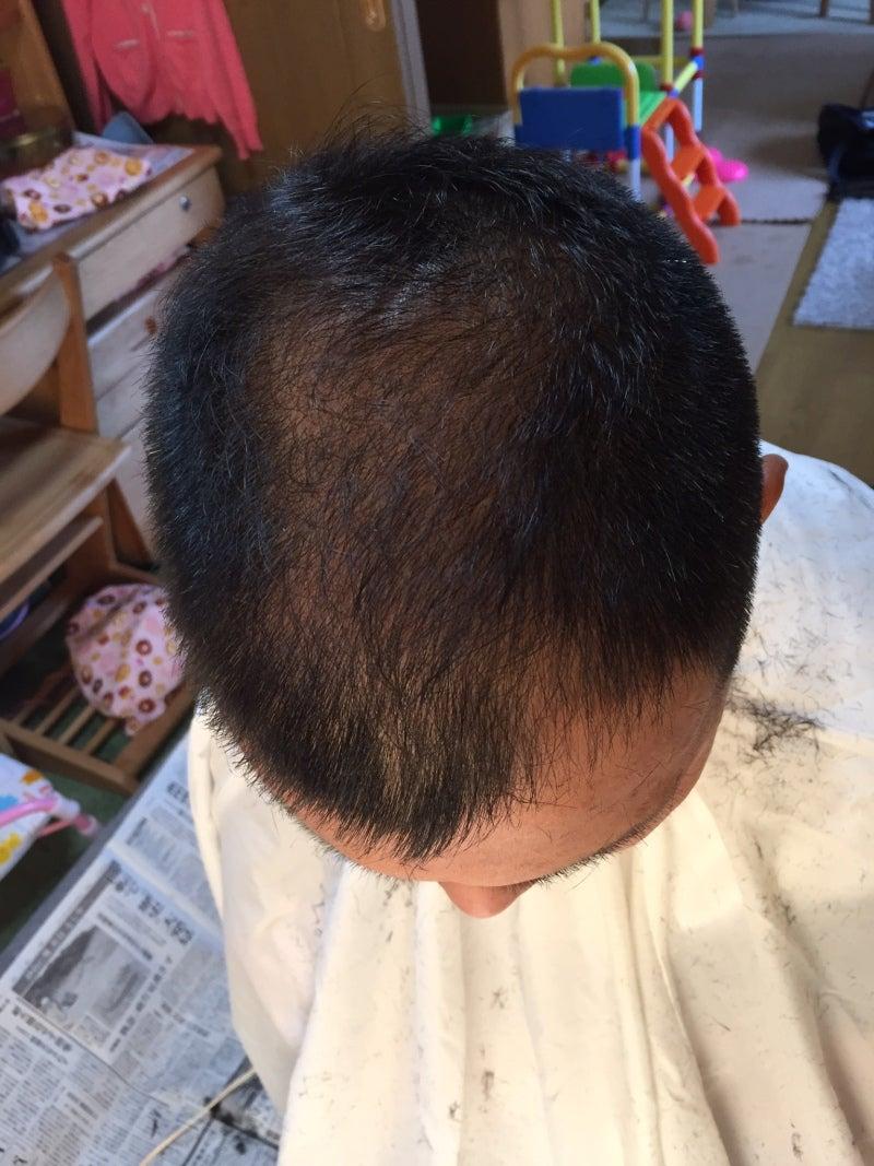 Aga フィンペシア ミノタブ 48日目 散髪 若はげからの脱出