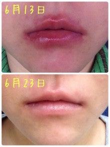 唇 の ふち が かゆい