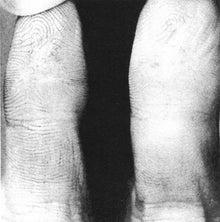 特筆すべき点は、村井の指の写真である。指紋を消そうとした痕跡がはっきり分かる写真だ。坂本弁護士一家殺害事件時に、手袋を付け忘れ、ドイツ入国時にフライパンで