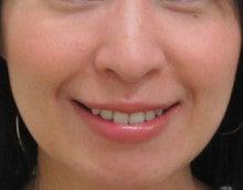 1m smile