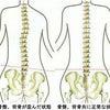 神経の圧迫、筋肉のコリ、全て骨盤の歪みが原因です!!の画像