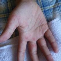 手足口病。