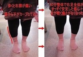 膝痛改善・O脚・X脚改善