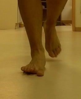 ランニング障害 膝の痛み 半月板損傷