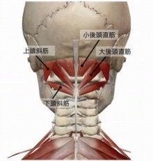「DRT 後頭下筋 」の画像検索結果