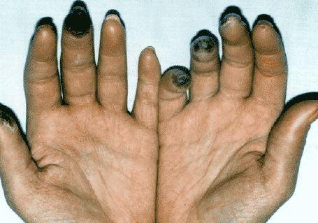 トラクリア錠、全身性強皮症の手...