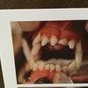 歯の治療をしてきましたの画像