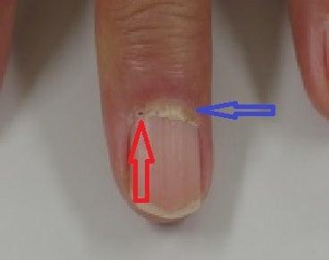 爪も大事な身体所見 Part③~爪上皮出血点と爪上皮延長~ | 救急 ...