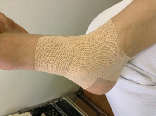 性 脛骨 外 テーピング 有 痛