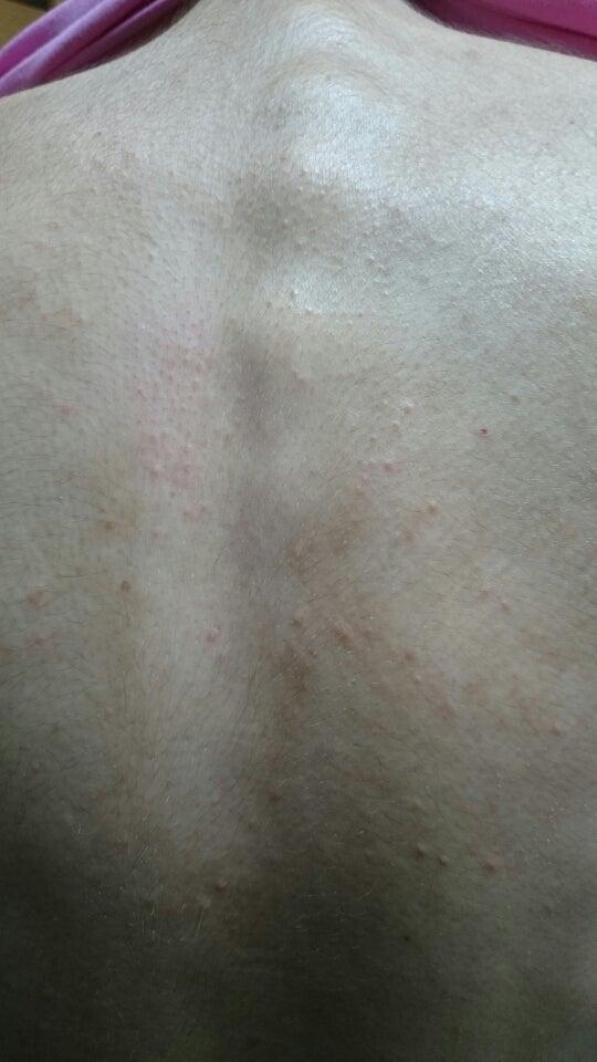の 湿疹 胸 谷間