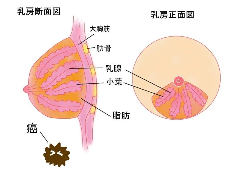北斗晶さんの乳ガンは検診が原因?|世界の真実 地球レベルで地球をよくしていく為のブログ