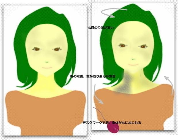 左右で肩の高さが違う、顔の歪み、アゴの歪み