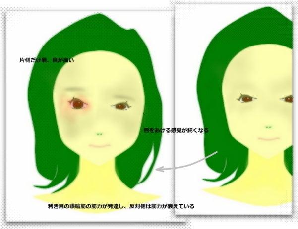 左右で目の大きさが違う 、目の高さが違う なおす方法