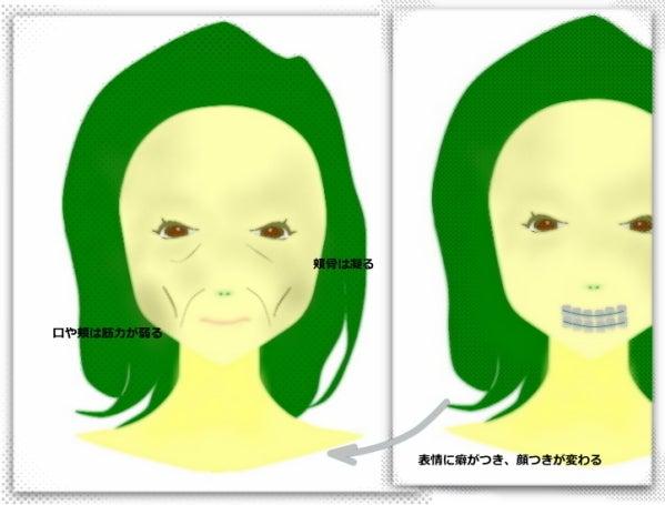 歯列矯正、顔の変化、失敗しないための老け顔ケア