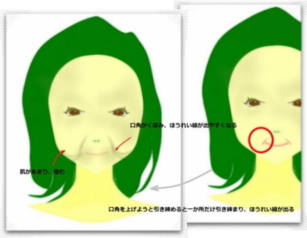 口角上げるとほうれい線が出る 顔ヨガ、顔体操の逆効果