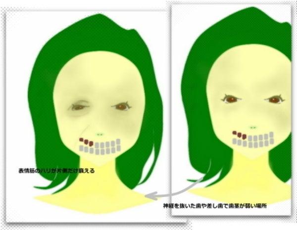 歯の神経ない、さし歯からのたるみ、しわ 顔の歪み